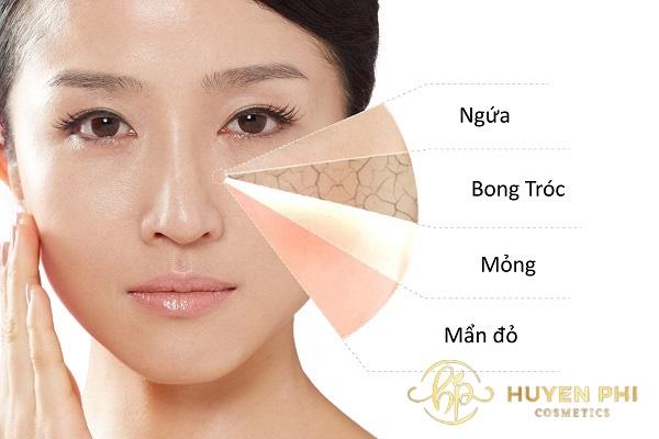 Da mặt bị rát khi bị viêm da