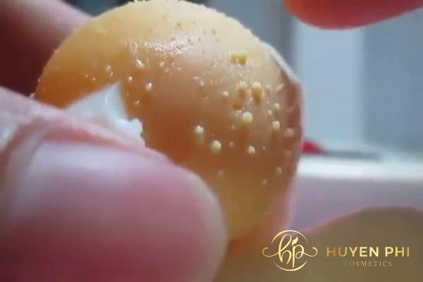 Trứng gà xuất hiện mảng đen sau khi thoa lên da
